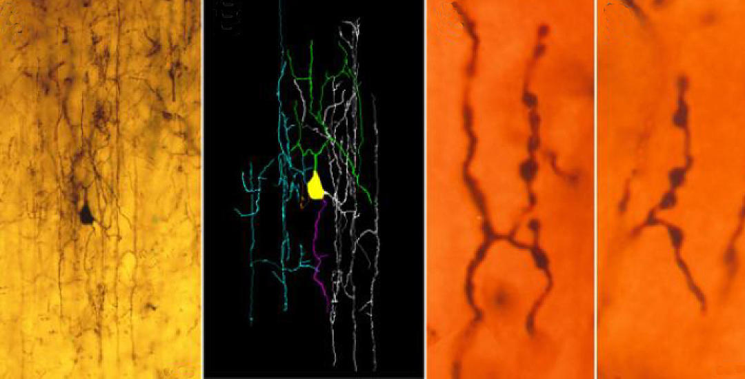 Chandelier Cells May Sprout Few Branches in Autism Brains