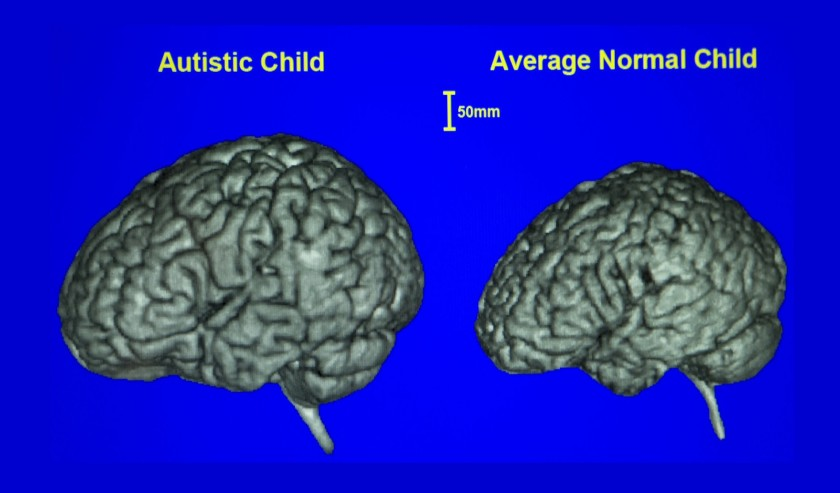 UCSD seeks volunteers for study that will try to identify risk of autism before symptoms appear- The San Diego Union-Tribune